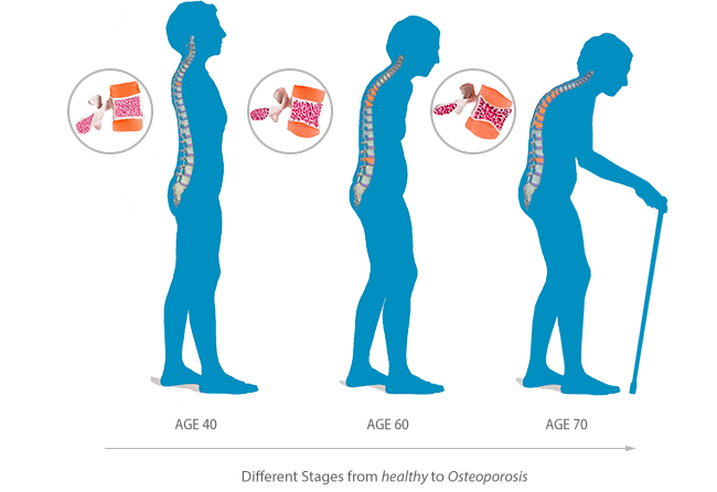 A graphic representation of the different stages from healthy to Osteoporosis over the years