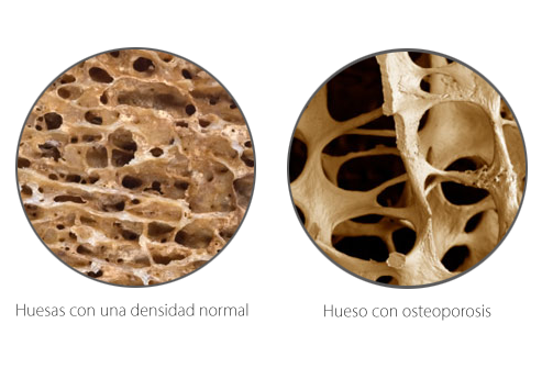 A graphic comparison of normal bone density and Osteoporosis showing a striking difference