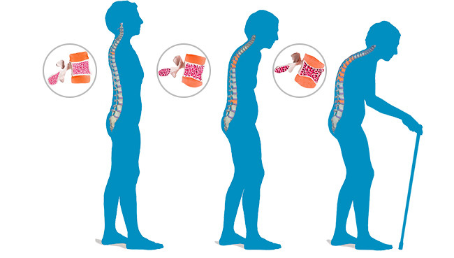 Osteoporosis: Change in posture