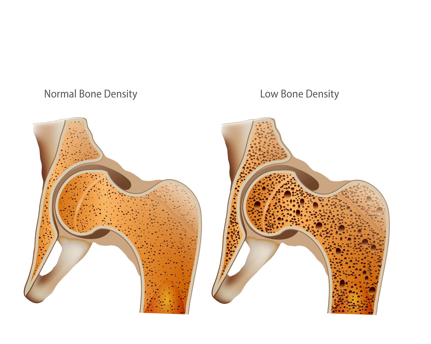 A graphic depiction of normal and low bone density